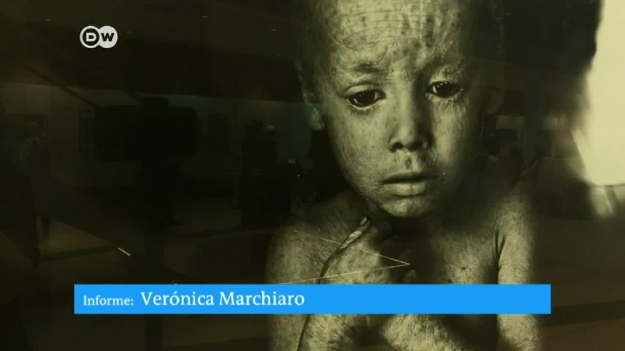 Agricultura envenenada: una muestra fotográfica