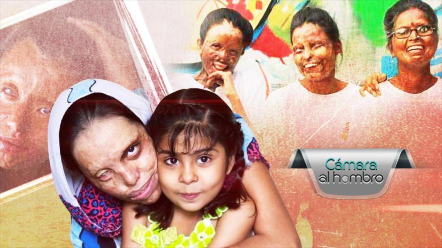 Víctimas del Ácido en República Dominicana