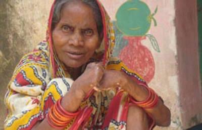 Lepra: del estigma a la esperanza