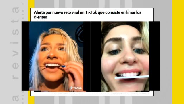 Limar os dentes na casa, os perigos dos retos virais - 28/09/2020 13:56