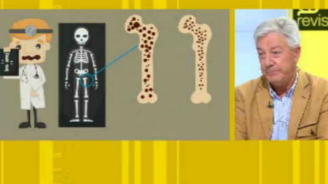 Os traumatólogos chámanlle a epidemia silenciosa, falamos da osteoporose - 30/09/2019 13:31