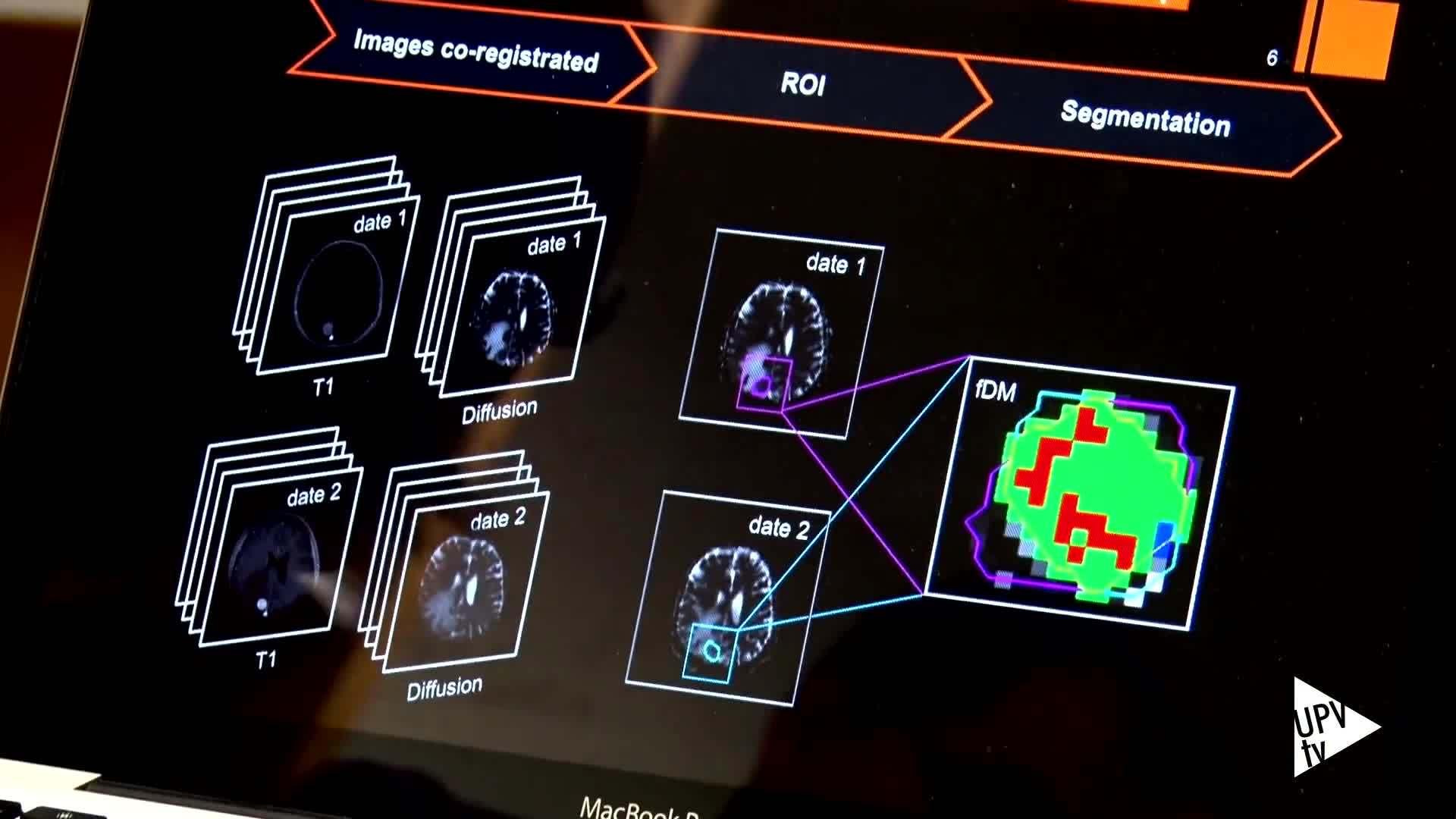 13-06-2016 Biomarcador tumor cerebral
