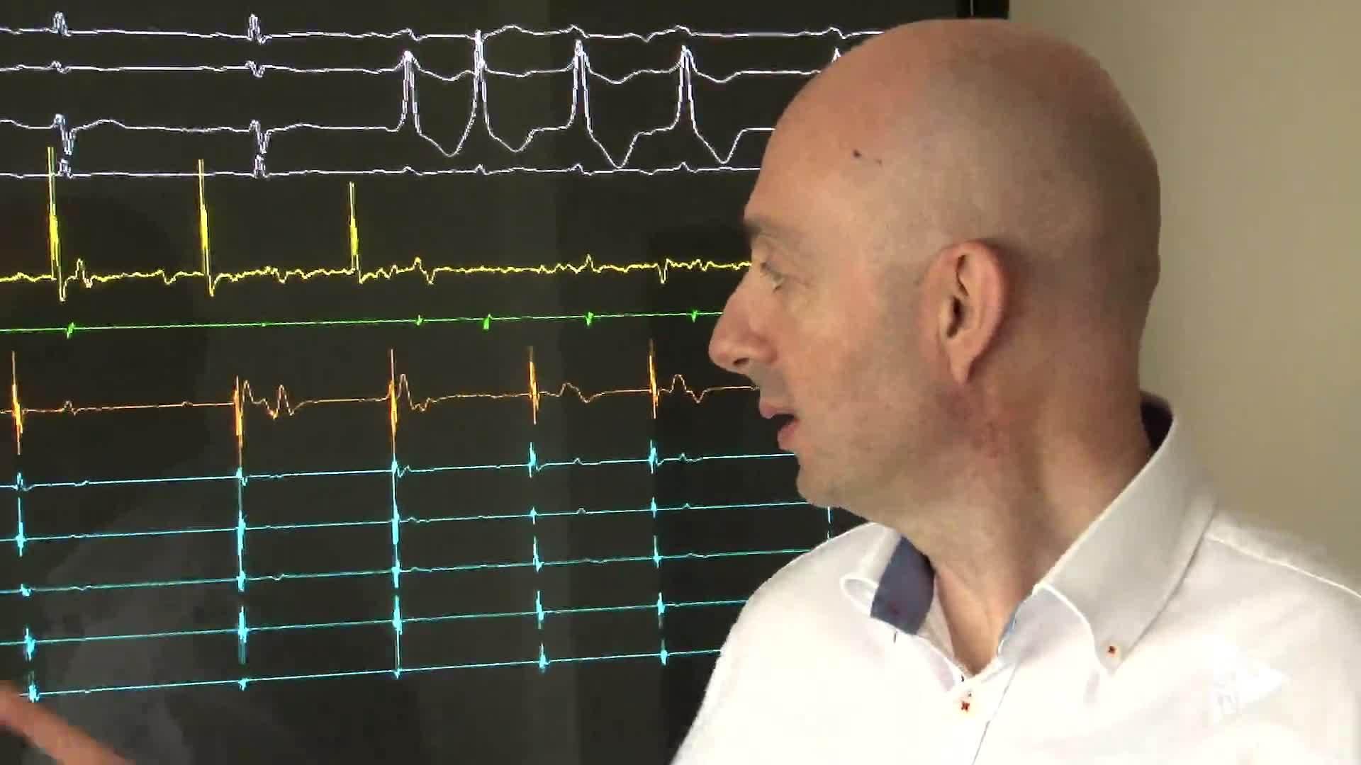 29-05-2017 Software arritmias cardiacas